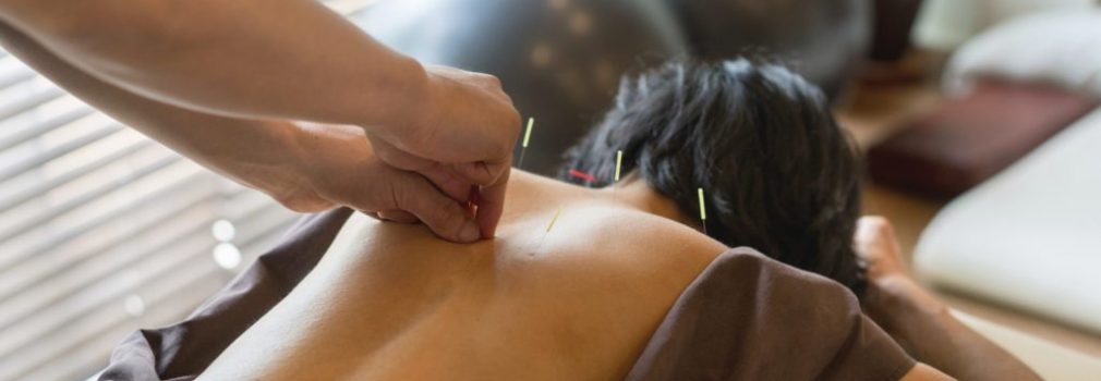 health-wellness_health-centers_aging-gracefully_acupuncture-for-hot-flashes_2715×1810_97275815-1024x768